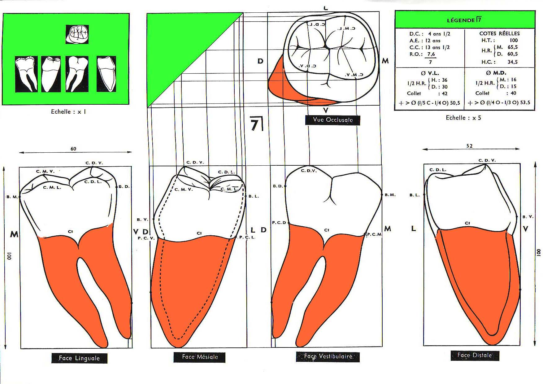 resultat cap prothesiste dentaire marseille Suivez un brevet technique des métiers prothésiste dentaire à saint-etienne créé en 1989 et proposant des formations du cap au bac +3 cfa ifir arl.